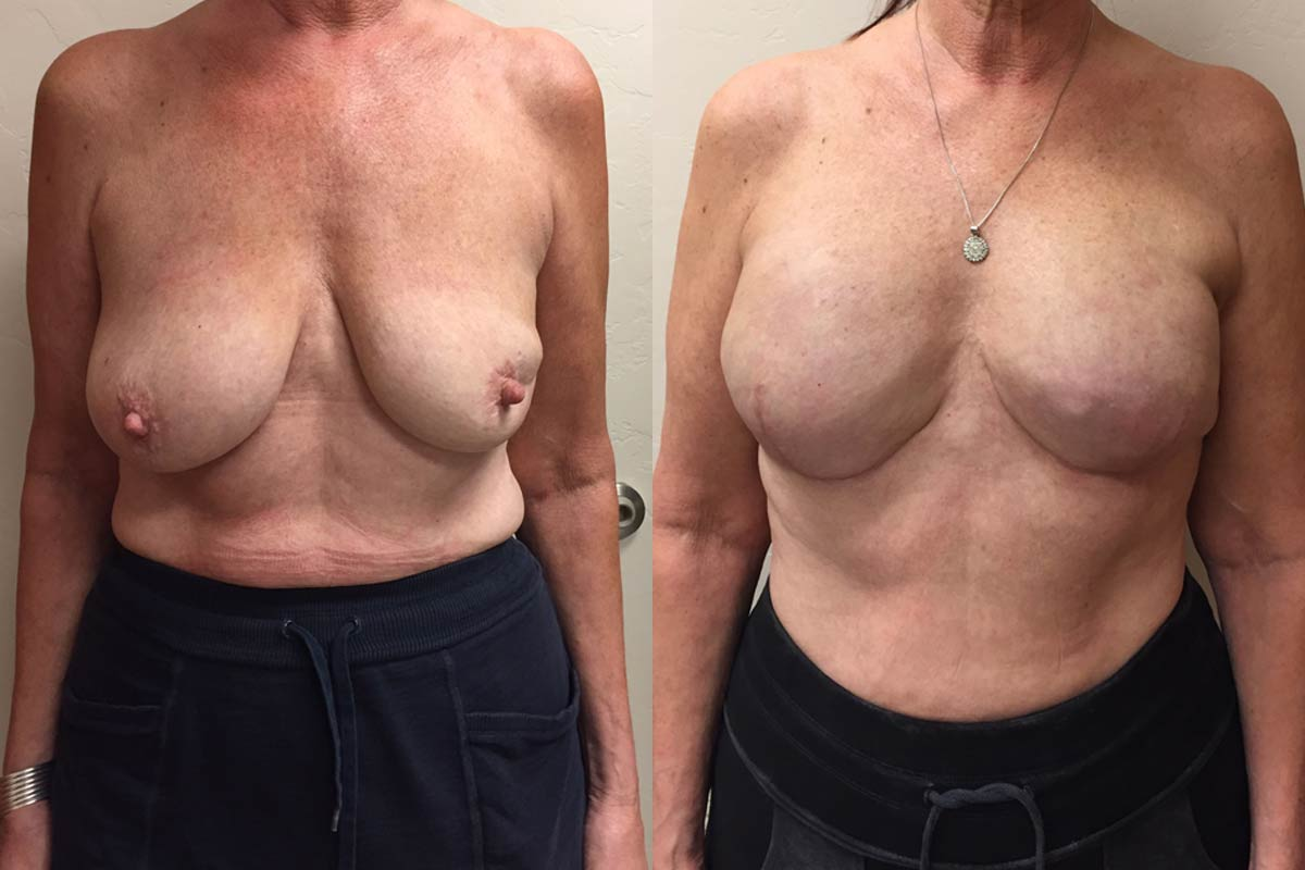 breast reconstruction tucson before and after