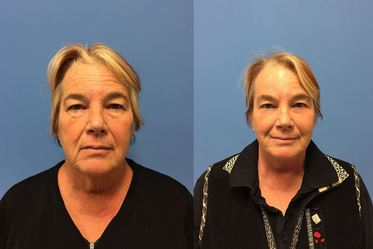 A woman before and after cosmetic surgery to lift her eyebrows
