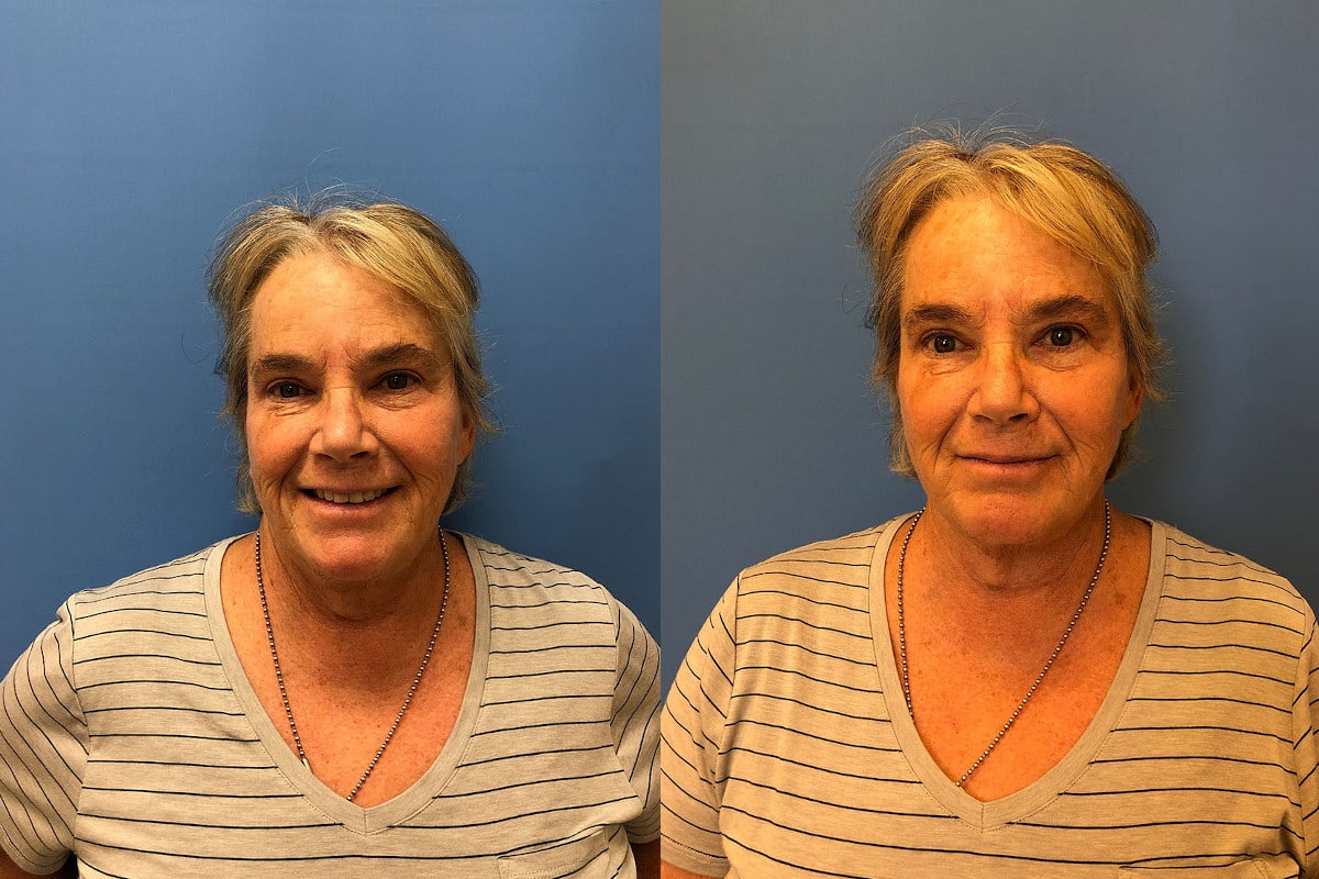 A woman before an after brow lift surgery