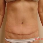 After - Abdominoplasty #4 from the front