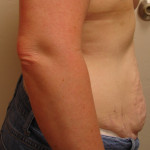 Before - Abdominoplasty #3 from the right