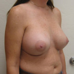 After - Breast Augmentation #6 from the right