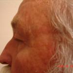 Before - Blepharoplasty #3 from the left