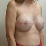 After - Breast Reconstruction #1 from the right