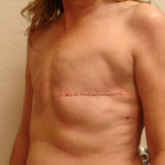 Before - Breast Reconstruction #1 from the left