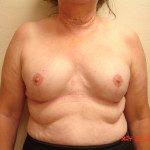 After - Breast Reconstruction #2 from the front