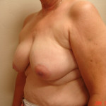 Before - Breast Reconstruction #2 from the left