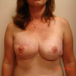 After - Breast Reconstruction #3 from the front
