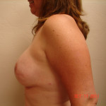 After - Breast Reconstruction #3 from the left