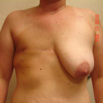 Before - Breast Reconstruction #3 from the front