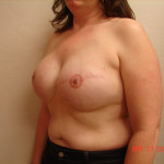 After - Breast Reconstruction #9 from the left