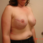 After - Breast Reconstruction #9 from the right
