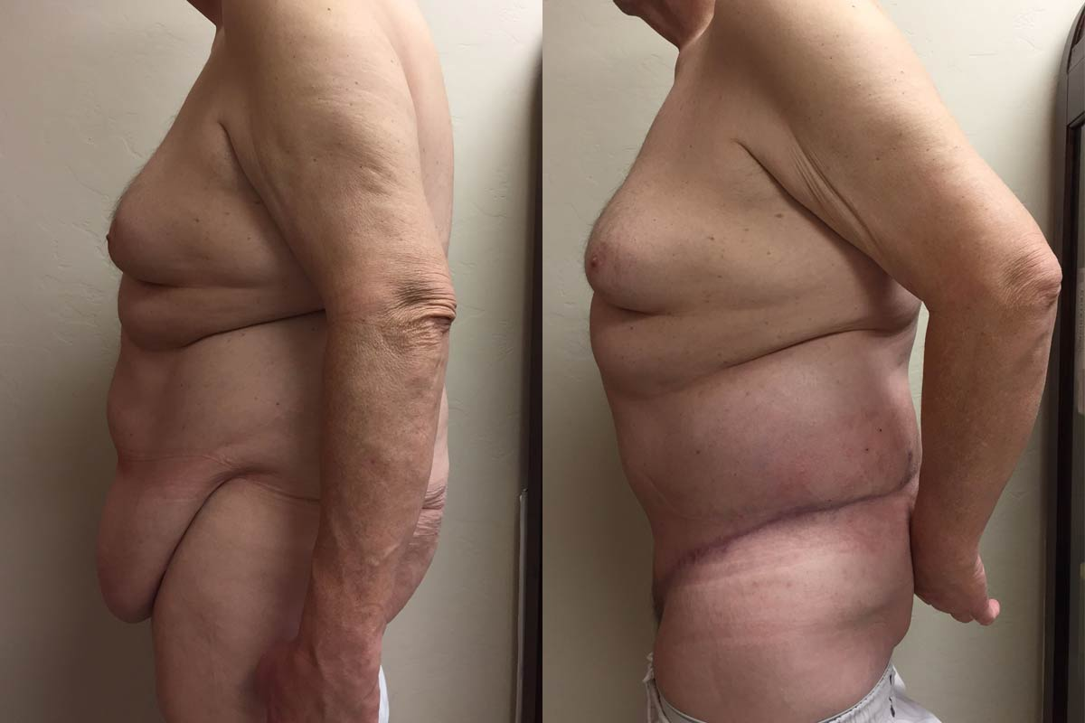 best lower body lift surgeon tucson