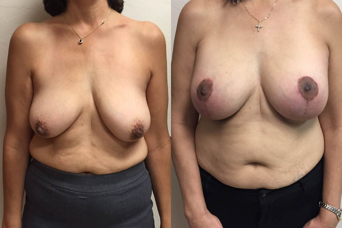 breast augmentation tucson before and after