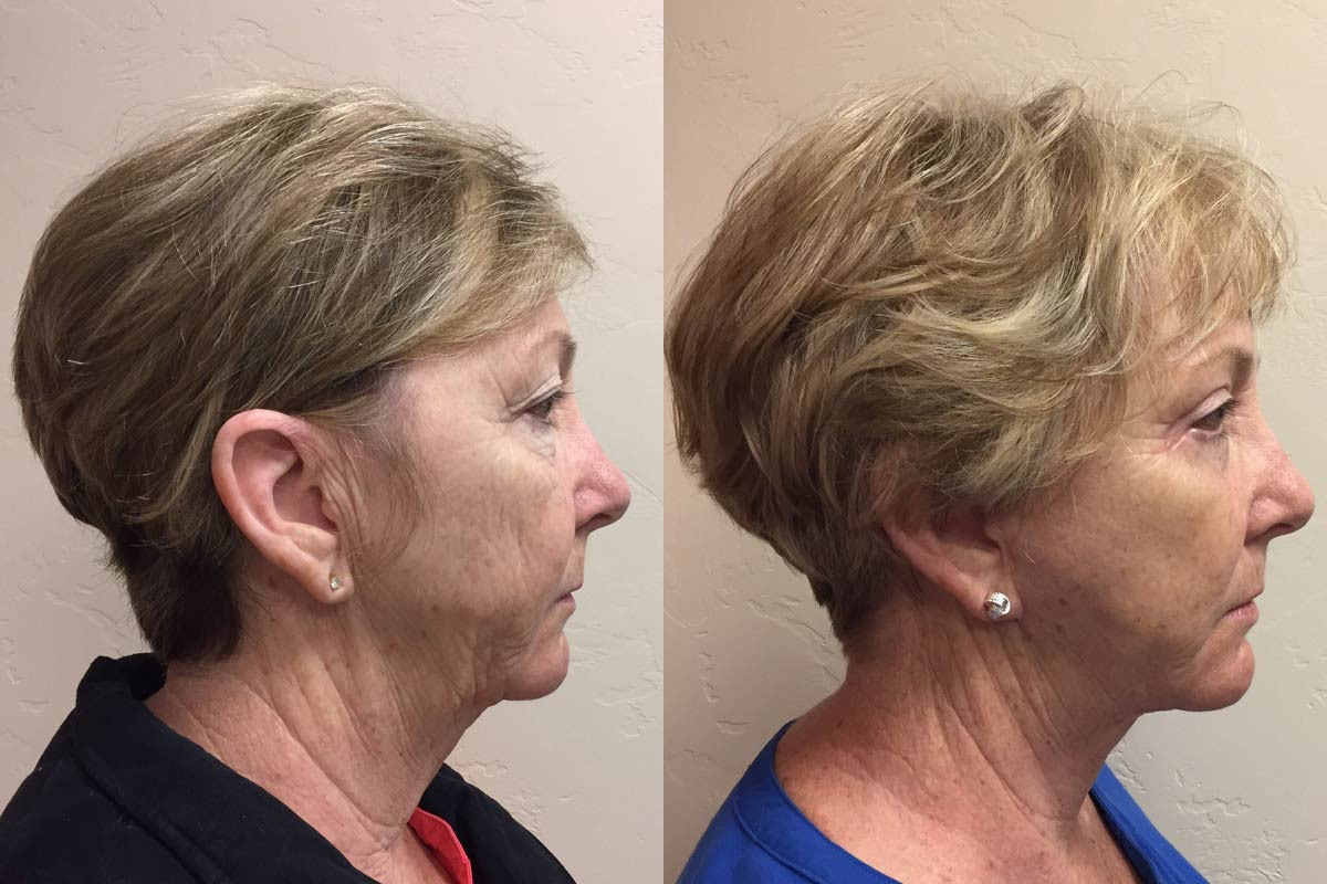 facelift tucson before and after