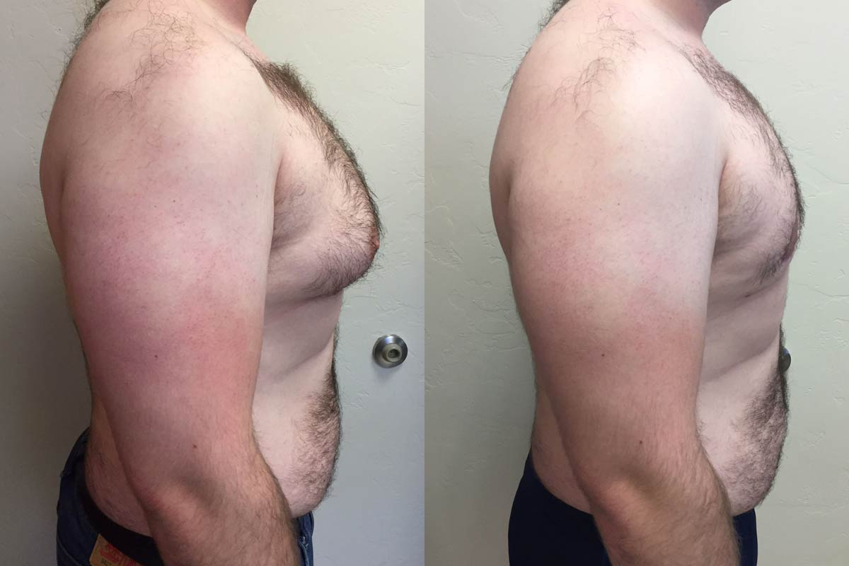 gynecomastia surgery tucson before and after