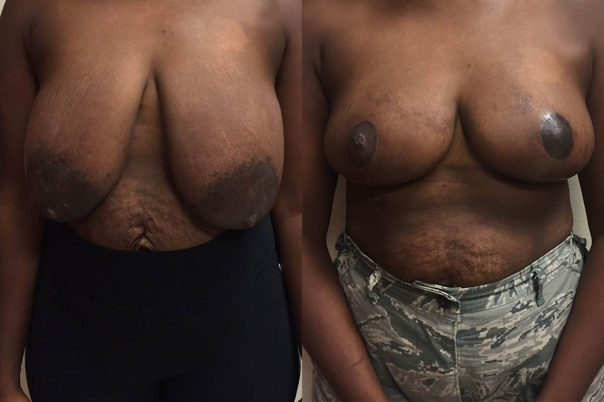 breast reduction tucson before and after