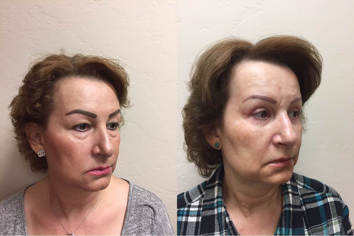 eyelid surgery tucson before and after