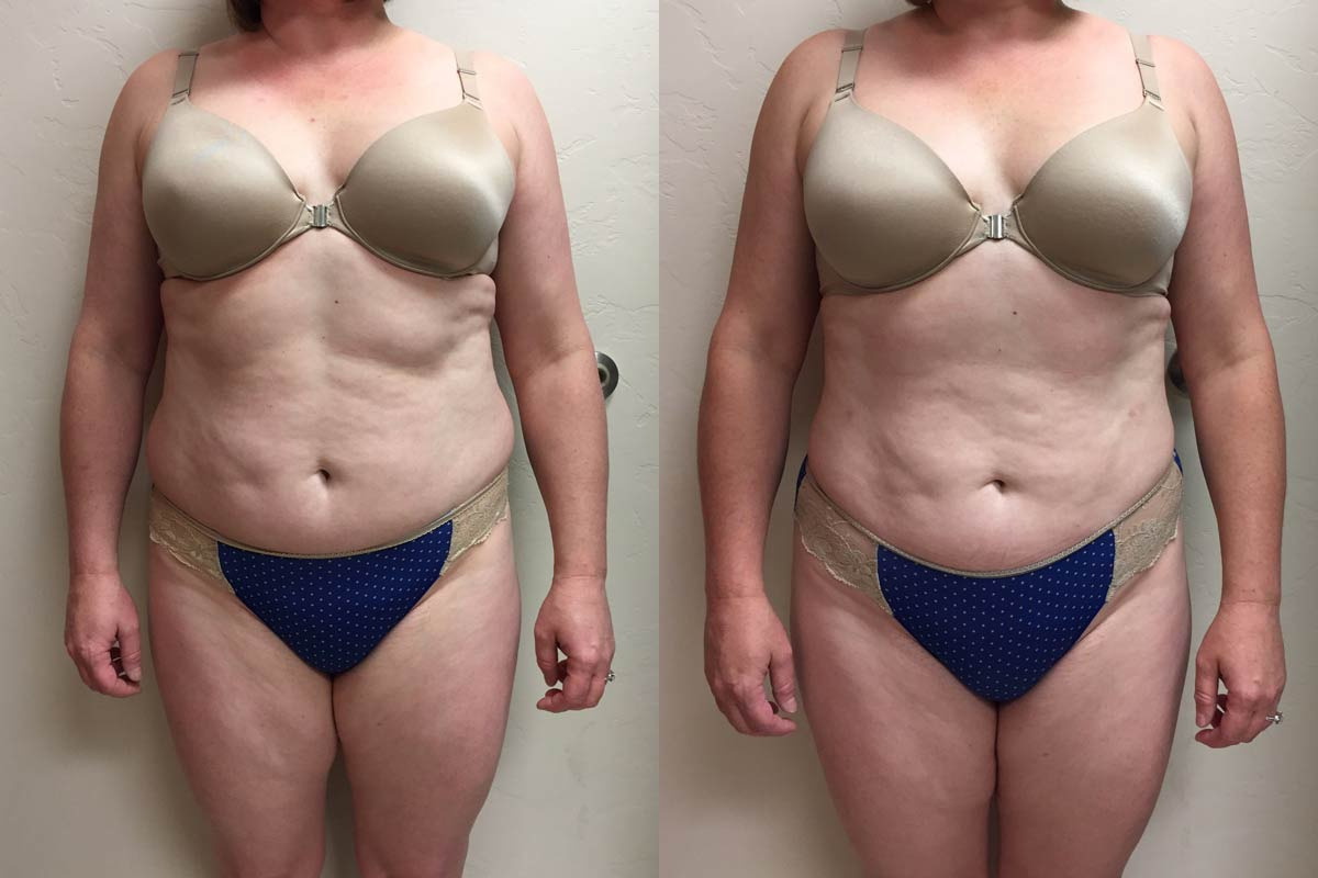 tumescent liposuction arizona before after