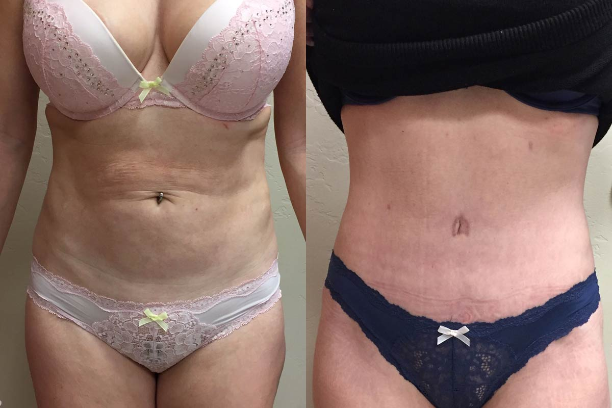 tummy tuck surgery tucson before and after
