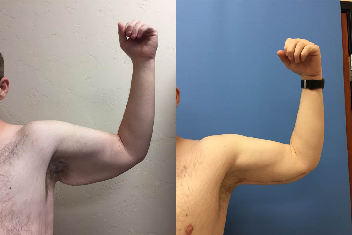 arm fat reduction tucson before and after