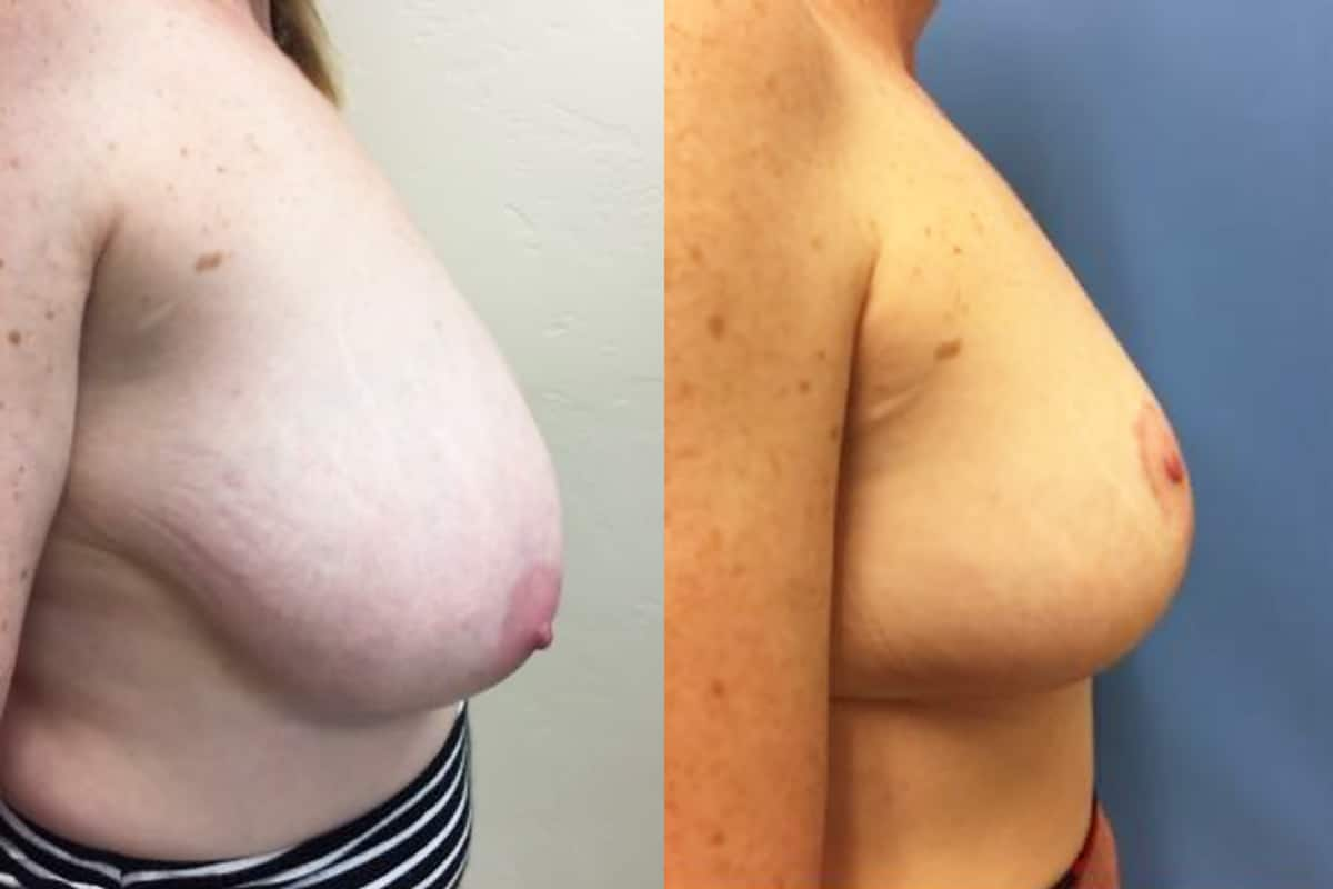 Bilateral Breast Reduction before and after