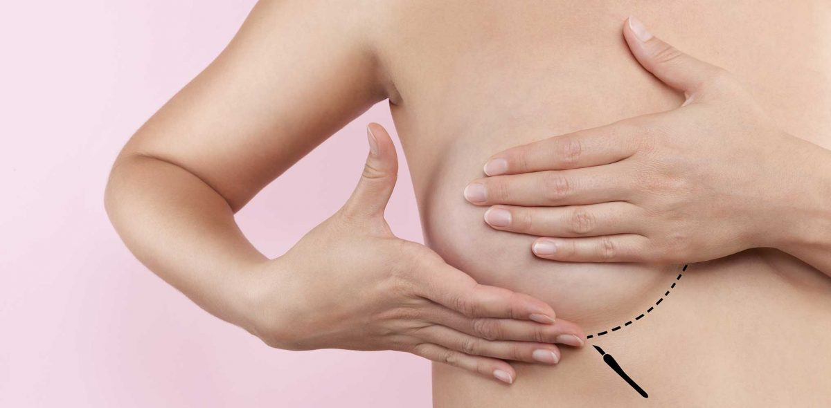 Nipple Changes After Breast Augmentation