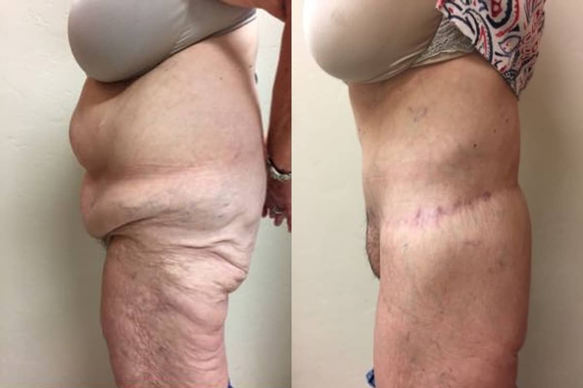 Total Body Lift Before and After
