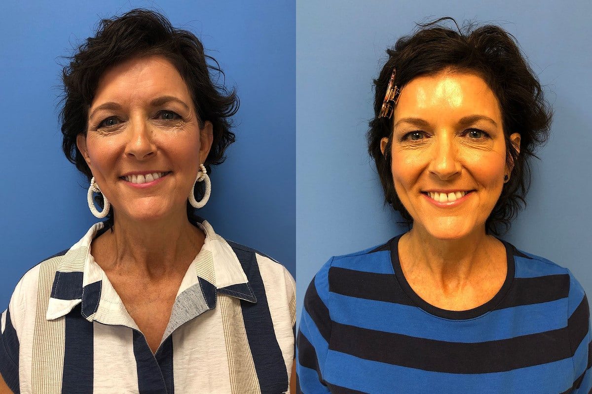 A woman before and after Dysport injections to fix crow's feet and wrinkles