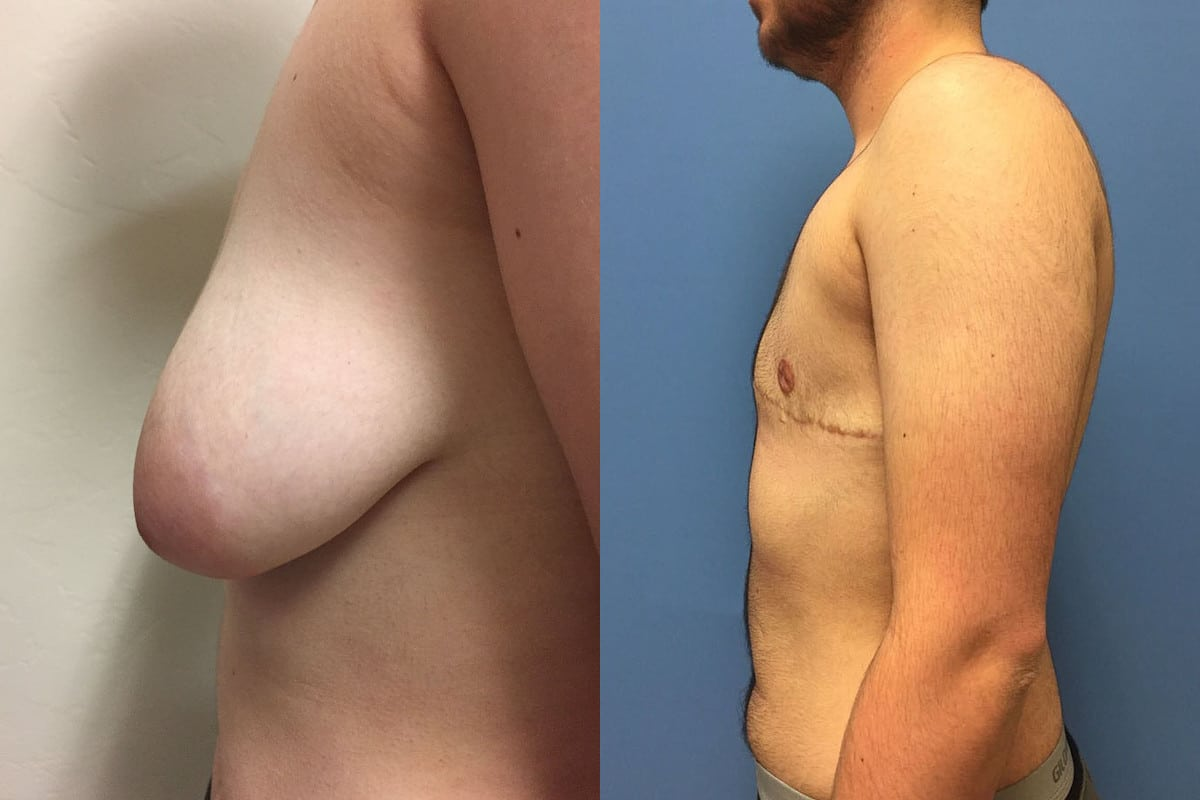 Side view of a transgender patient's breast surgery