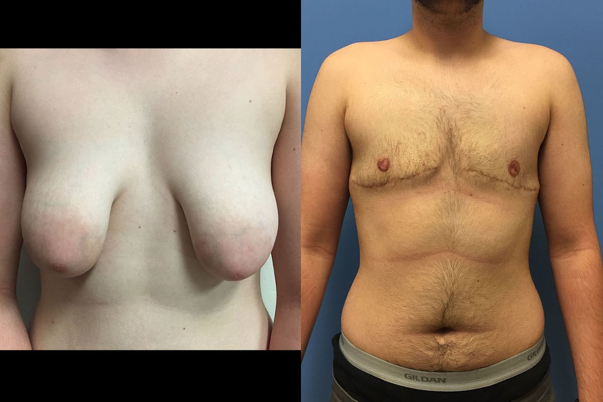 Before and after photos of an FTM patient's mastectomy