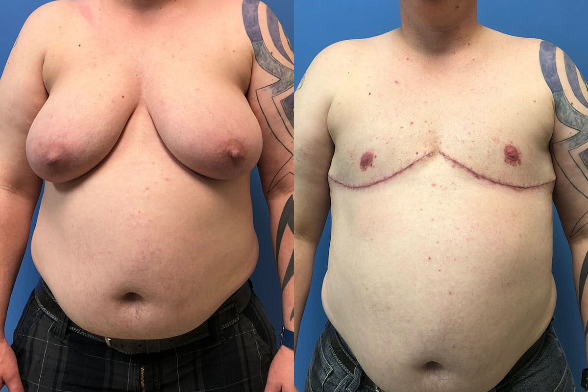 Before and after plastic surgery photos of an FTM patient's breast reduction