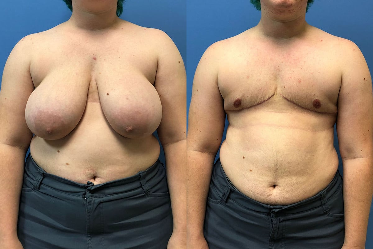 Front view of a patient before and after and FTM transgender mastectomy