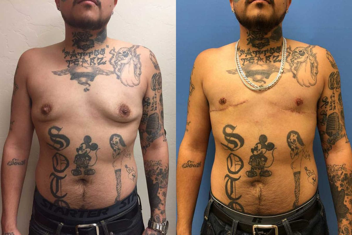 Before and and after a female-to-male transgender bilateral mastectomy