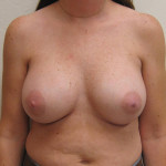After - Breast Augmentation #6 from the front