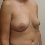 Before - Breast Augmentation #6 from the right