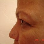 Before - Blepharoplasty #2 from the left