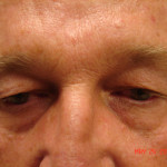 Before - Blepharoplasty #3 from the front