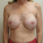After - Breast Reconstruction #1 from the front
