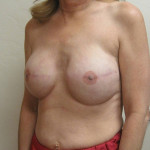 After - Breast Reconstruction #1 from the left