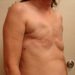 Before - Breast Reconstruction #1 from the right