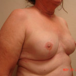 After - Breast Reconstruction #2 from the right