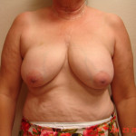 Before - Breast Reconstruction #2 from the front