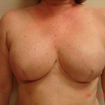 After - Breast Reconstruction #7 from the front