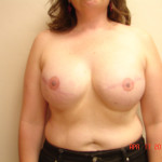 After - Breast Reconstruction #9 from the front