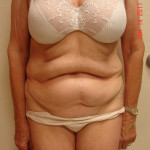 Before Tummy Tuck from the front